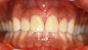 Close-up photo of patient after receiving porcelain veneers from Pasadena dentist Dr. Arash Azarbal.