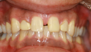 Close-up photo of patient before receiving porcelain veneers from Pasadena dentist Dr. Arash Azarbal.