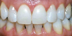 teeth-whitening-after