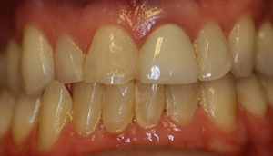 Close-up photo from Pasadena cosmetic dentist Dr. Arash Azarbal of patient before receiving porcelain crowns.