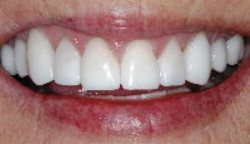 After photo of Pasadena metal-free crowns, which are available from Dr. Arash Azarbal.
