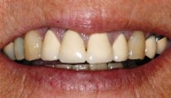 Before photo of Pasadena metal-free crowns, which are available from Dr. Arash Azarbal.