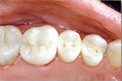 After photo of Pasadena metal-free fillings, which are available from Dr. Arash Azarbal.