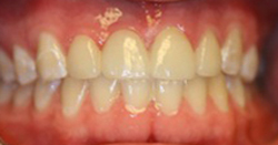 After photo of porcelain bridge from Pasadena cosmetic dentist Dr. Arash Azarbal.