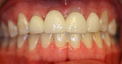 Before photo of porcelain bridge from Pasadena cosmetic dentist Dr. Arash Azarbal.