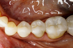 After photo of porcelain onlay from Pasadena cosmetic dentist Dr. Arash Azarbal.