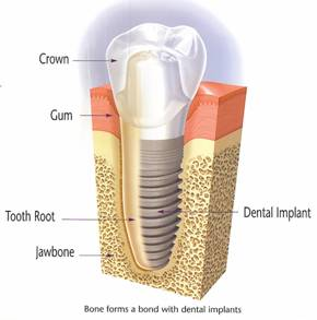 Diagram of a Pasadena dental implant, which is available from Dr. Arash Azarbal.