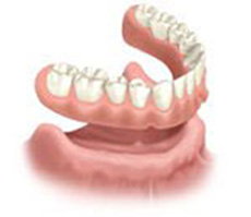 Graphic illustration of dentures, which are available from Pasadena dentist Dr. Arash Azarbal.