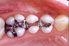 Before photo of amalgam tooth filling, which can be replaced by mercury-free dentist Dr. Arash Azarbal.