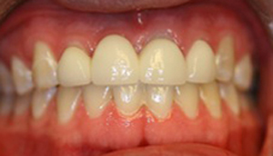 Close-up photo of patient before receiving an all-porcelain bridge from Pasadena dentist Dr. Arash Azarbal.