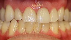 Close-up photo of patient after receiving porcelain crowns from Pasadena dentist Dr. Arash Azarbal.
