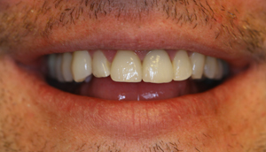 Second close-up photo of patient after receiving porcelain crowns from Pasadena dentist Dr. Arash Azarbal.