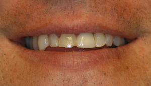 Close-up photo of patient before receiving porcelain crowns from Pasadena dentist Dr. Arash Azarbal.