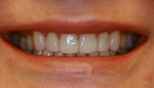 After picture of patient (P) for porcelain veneers from Pasadena dentist Dr. Arash Azarbal.