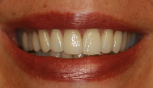 After picture of patient (M) for porcelain veneers from Pasadena dentist Dr. Arash Azarbal.