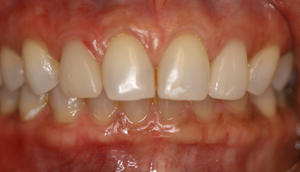 After picture of fractured porcelain veneer that was repaired by Pasadena dentist Dr. Arash Azarbal.