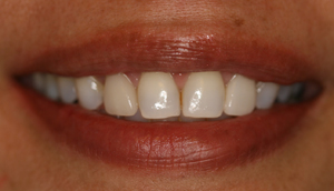 Second after picture of fractured porcelain veneer that was repaired by Pasadena dentist Dr. Arash Azarbal.