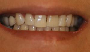 Before picture of patient (P) prior to receiving porcelain veneers from Pasadena dentist Dr. Arash Azarbal.