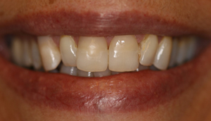Before picture of patient (M) prior to receiving porcelain veneers from Pasadena dentist Dr. Arash Azarbal.