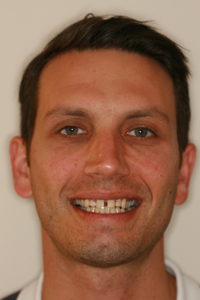 Full-face photo of patient before receiving porcelain veneers from Pasadena dentist Dr. Arash Azarbal.