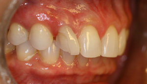 Second before picture of fractured porcelain veneer that was repaired by Pasadena dentist Dr. Arash Azarbal.