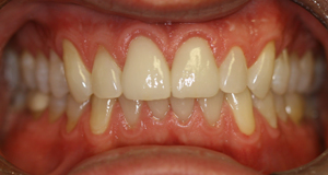 After picture of porcelain veneers (CY) from Pasadena dentist Dr. Arash Azarbal.