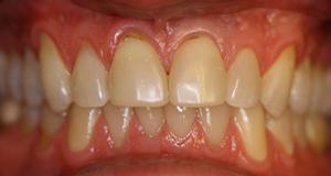 Porcelain veneers before picture (CY) from Pasadena dentist Dr. Arash Azarbal.