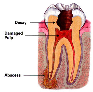 Diagram of a decayed tooth in need for a Pasadena root canal treatment from Dr. Arash Azarbal.