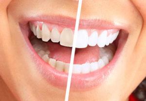 conservative-dentistry